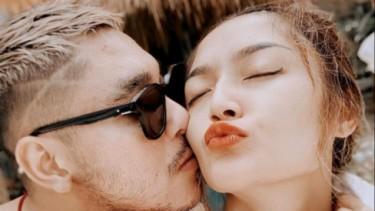 Siti Badriah Lakukan Filler Bibir, Makin Seksi Mirip Kylie Jenner